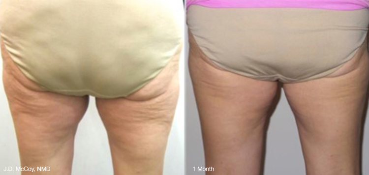 Thighs before and after ThermiSmooth