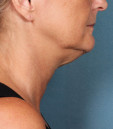 Before picture - Kybella