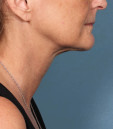 After picture - Kybella