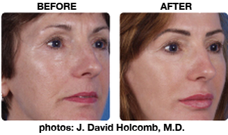 Dayton Laser Treatments - BBL Laser Treatment Before & After Centerville Dayton OH