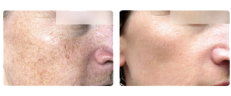Resurfacing Laser Treatment Before & After Centerville Dayton OH